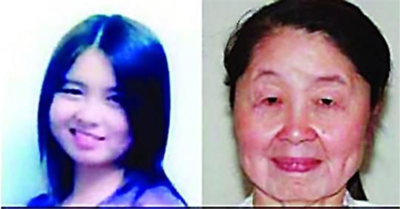 28-year-old woman appears 60 years-old due to a rare condition