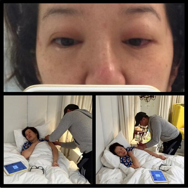 Kris suffers allergic reaction