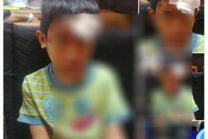 Help Find Criminal Behind Hit -and- Run Incident That Left This Boy's Skull Cracked