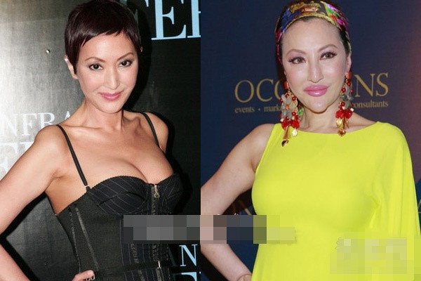Fanny Sieh Before and After Photos