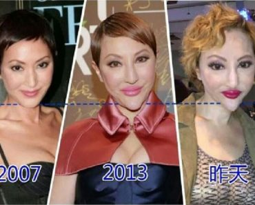 Cosmetic Surgery Nightmare: Actress Looks Completely Unrecognizable After Her Surgery