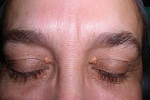 FYI: The Patches On Your Eyelids Can Be A Sign Of Heart Disease