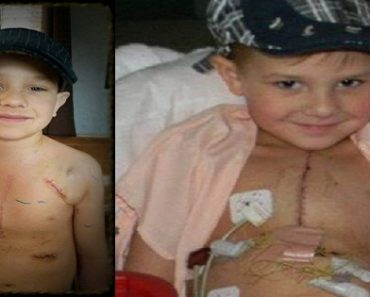 Boy Cried Because of Ugly Surgery Scars but Strangers Helped Make Him Happy