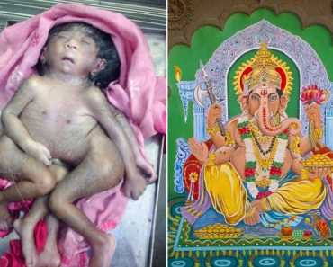 Baby Born with Four Legs and Four Arms Worshipped by Thousands of Hindus