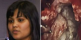 evil twin found inside woman's brain