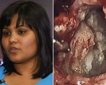 "Doctors Discover ""Evil Twin"" inside Woman's Brain"