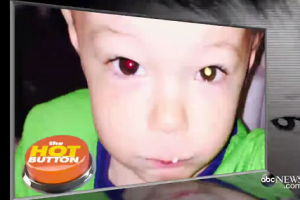 After Taking a Photo, Mom Discovers Son's Eye Cancer and Saves His Life