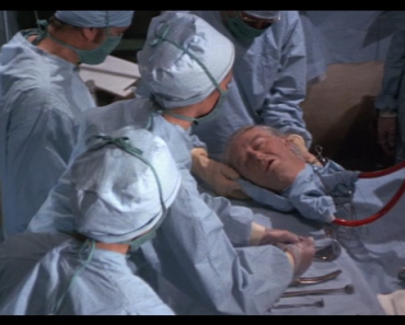 World's First Head Transplant: Did it Really Happen?