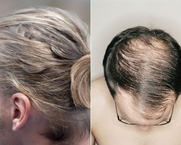 This Hairstyle Can Possibly Cause Balding Among Men