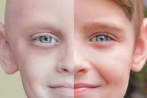 This Boy's Before and After Cancer Photo Is Absolutely Inspiring
