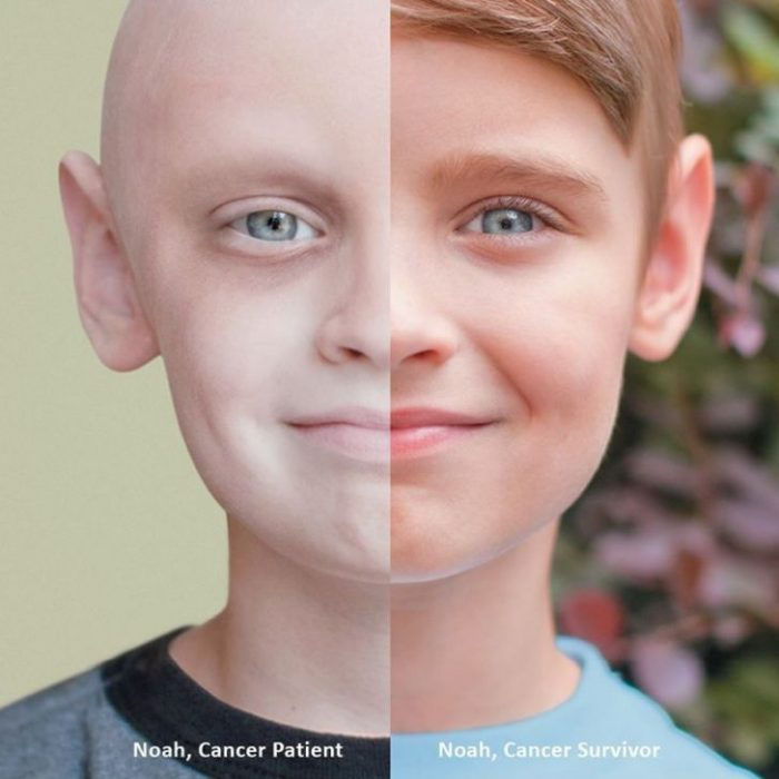 noah cancer survivor