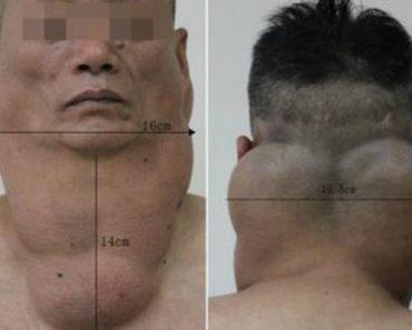 Alcoholic Man Develops Enormous Fatty Tumour on His Neck