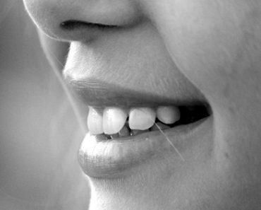 Top 10 Natural Remedies For Halitosis (Bad Breath)