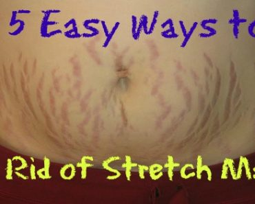 Top 5 Easy Ways to Get Rid of Stretch Marks