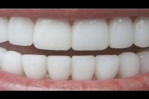 How to Whiten Your Teeth Naturally in 3 Minutes