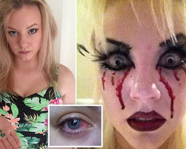 Woman Nearly Goes Blind After Wearing Novelty Contact Lenses