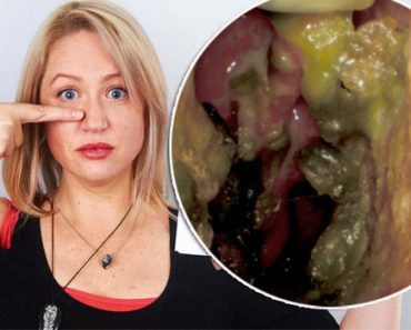 """Actress """"Sneezes Out Her Nose Bone"""" After Flesh-Eating Bacteria Ate Her Face"""