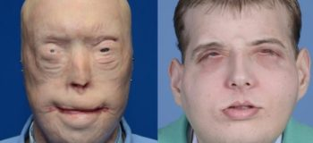 Firefighter Left With Disfiguring Burns Undergoes 'Most Extensive' Face Transplant