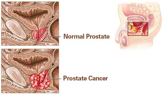 prostate-cancer-explained