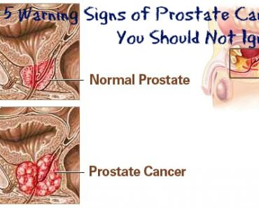 Top 5 Warning Signs of Prostate Cancer You Should Not Ignore