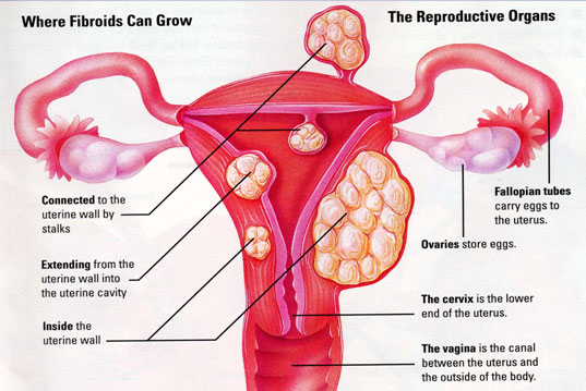 Photo credit: Cure Uterine Fibroids