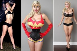 Model Who Had Her Ribs Removed to Look Like Jessica Rabbit Must Wear Corset at All times