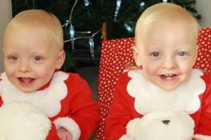 """Mom Gives Birth to Identical Twins that are Literally """"Mirror-image"""" Twins"""