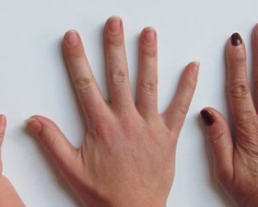 Ten Nail Symptoms and What they Reveal About your Health