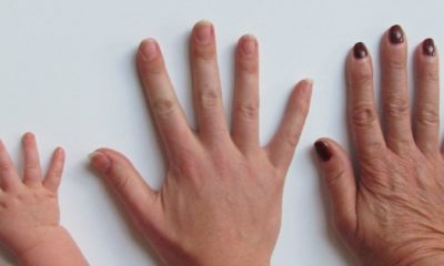 what nails reveal about your health