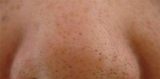 Blackheads-On-Nose