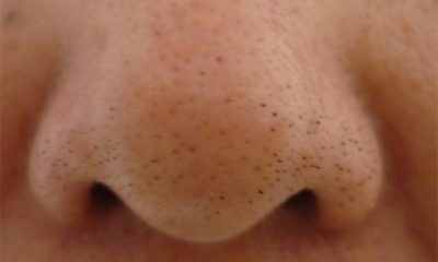 Blackheads-On-Nose