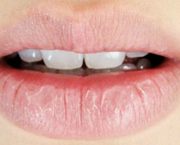 Get Rid of Your Chapped Lips By Using This Common Office Item