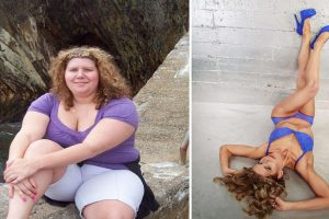 Formerly Obese Woman Becomes Bikini Model After Losing Weight