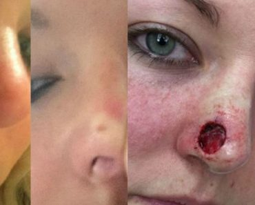Lady Who Thought She Had a Pimple Gets Diagnosed with Cancer