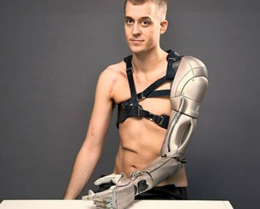 This Man's Bionic Arm Features a Laser Light, a Torch and Even a Drone