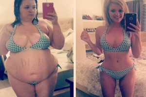 LOOK: Woman's Extreme Weight Loss After Dumping Jealous Boyfriend