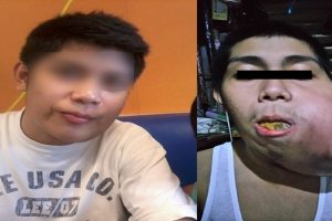 Financial Assistance Sought for Man with Rare Condition