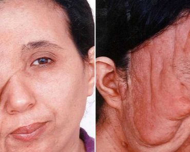 LOOK: Incredible Transformation of Woman with Disfigured Face after Undergoing Reconstructive Surgery