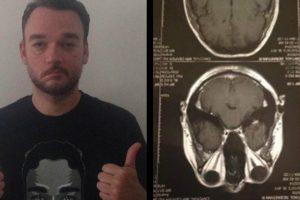 Wolfgang Vocalist Basti Artadi Opens Up About 'Head' Tumor