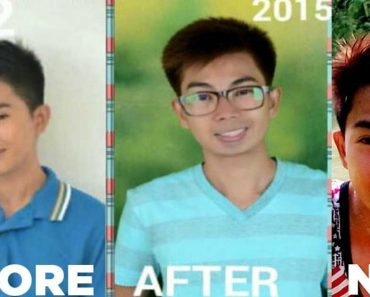 """LOOK: Former Model's P500-Nose Job Turns Him Into a """"Halloween Character"""""""