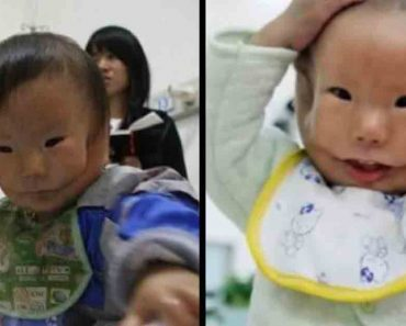 Heartrboken Mother Loses It After Finally Seeing Her Baby With Rare Facial Deformity