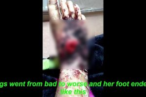 Teen with Painful Ingrown Toenail Had Her Leg Amputated