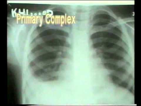 primary complex
