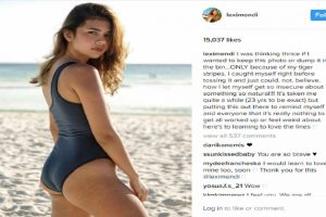 Young Instagram Star Goes Viral for Post Showing 'Tiger Stripes'