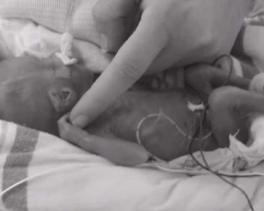 Miracle Baby Survives, Grows Up with No Disability