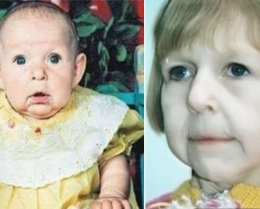 Baby Abandoned by Dad for Looking Old, Becomes an Inspiring Grown-Up