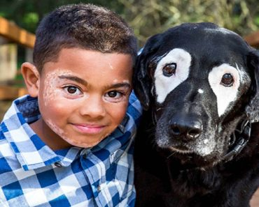 Boy with Vitiligo, Cheers Up After Meeting Dog with Same Condition