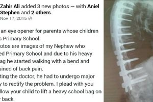 Student Undergoes Major Surgery after Breaking Back Due to Heavy Backpack