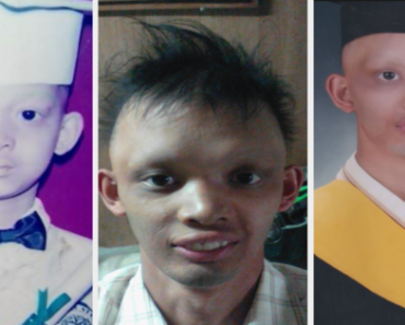 Bullied For His Physical Appearance, This Man Proved To Them That He Can Finish Studies