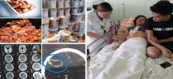 Girl Gets Cancer For Eating Processed and Instant Food